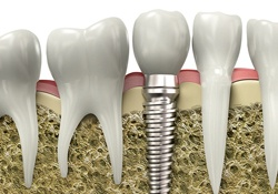 dental implant in bone