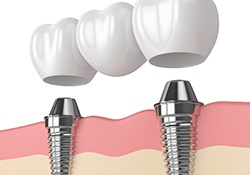 two titanium dental implants and three porcelain crowns