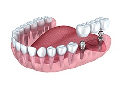 dental implants supporting porcelain fixed bridge
