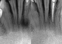 x-ray of tooth root