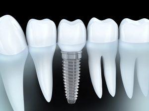 dental implants in Nashville