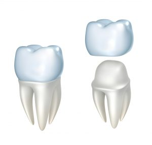 Get a new dental crown in Franklin in one day with CEREC crowns.