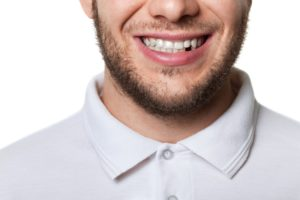 smile with missing tooth